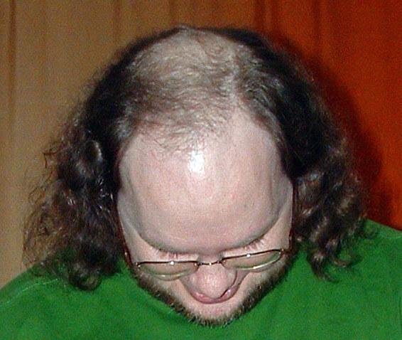 Male_pattern_baldness